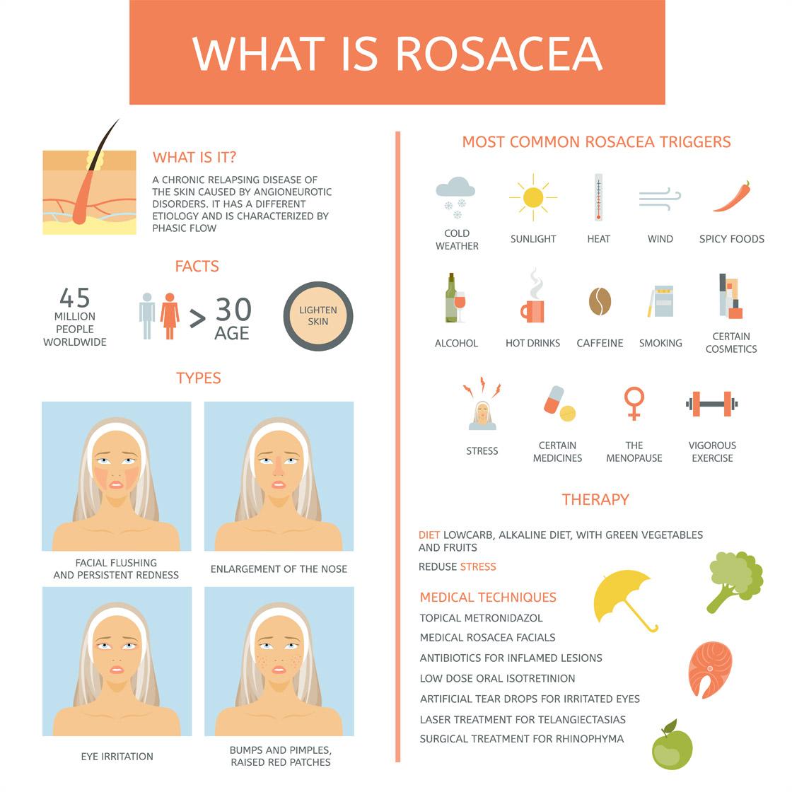 rosacea-infograph